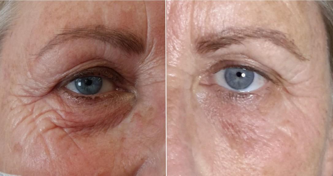 Plasma – Beautiful Healthy Skin, For Life!